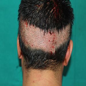 causes scalp hair loss