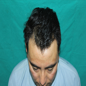 after scalp hair loss treatment