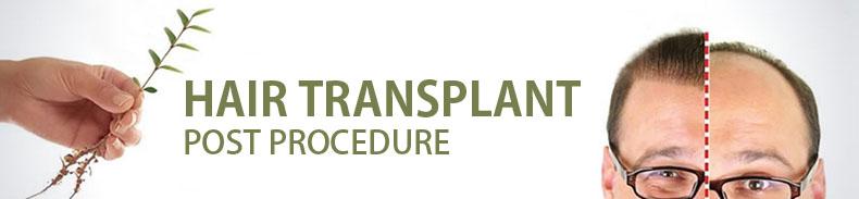 Hair transplant post procedure