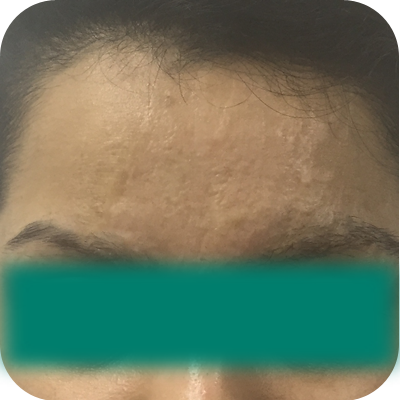 eyebrow hair restoration