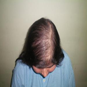 Hair Loss Treatment in Delhi NCR
