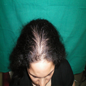 Female Hair Loss Treatment in Delhi