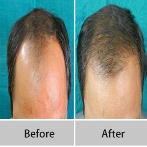 Hair Specialist Surgeon