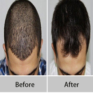 Delhi hair transplant clinic