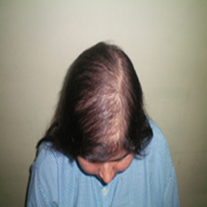 Hair Loss Treatment in Delhi NCR