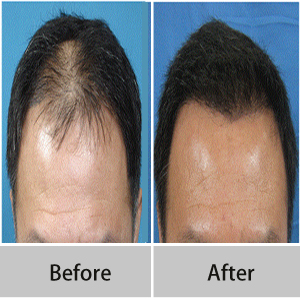 hair transplantation clinic