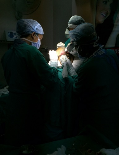 FUE Hair Transplant procedure